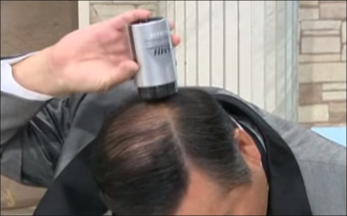 円形脱毛症の種類とうまく隠す方法!