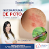 ATAQUES DE POTÓ: Dra. Danielly Luz Mendes orienta sobre lesões causadas pelo inseto na pele