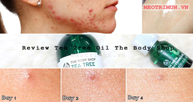 Review Tea Tree Oil The Body Shop