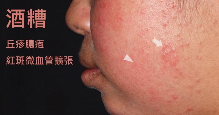 臉部除了紅斑,還有紅色的丘疹與膿疱