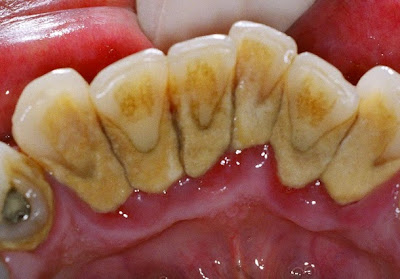 dental calculus, tartar on teeth