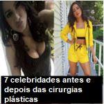 7 celebridades antes e depois das cirurgias plásticas