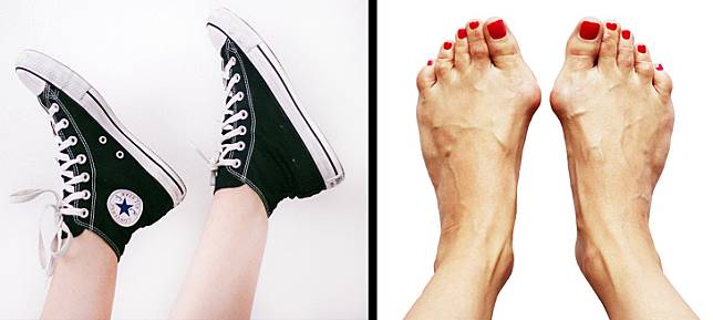 Dear Cewek, Jangan Pakai 5 Fashion Items Ini Tiap Hari Kalo Lo Nggak Mau Kena Dampak Buruknya