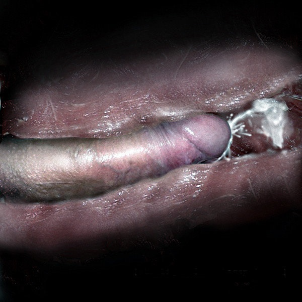Man injects penis with collagen video