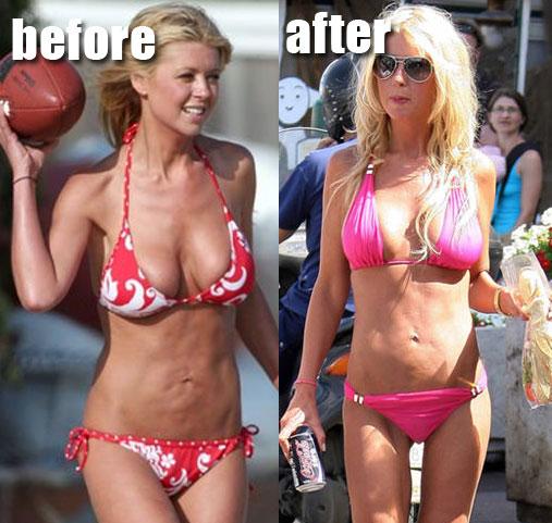 Tara Reid S Bad Plastic Surgery