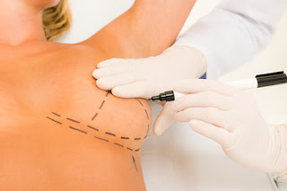 New York City Breast Augmentation Dr. Leonard Grossman