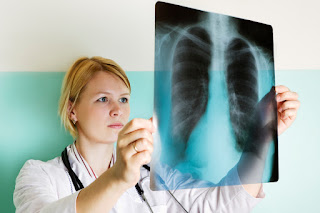 Mesothelioma Class Action Lawyer Maryland