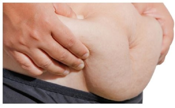 Tummy Tucks: Causes and Medical and Natural Solutions