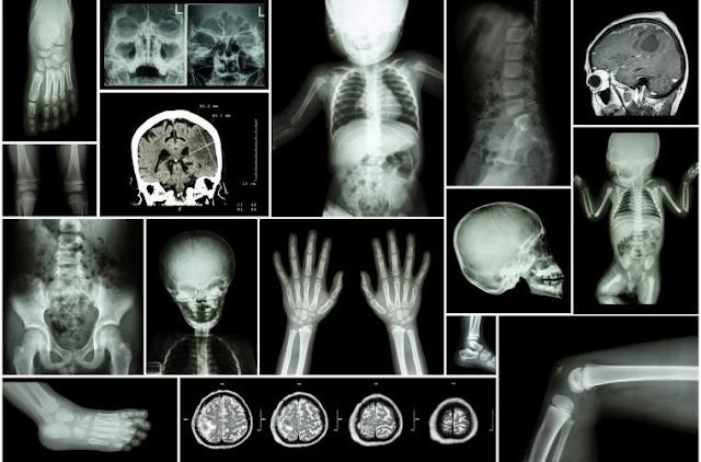 alluminio_dove_viaggia:nel_corpo_dopo_la_vaccinazione