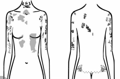 Los investigadores han localizado tatuajes en estas áreas del cuerpo. Aun falta estudiar la cabeza y las piernas de la momia. Créditos: Radio-Canadá