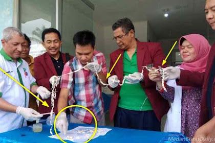 Cacing Pita 10.5 Meter Hidup Dalam Perut Seorang Warga Penyebabnya Karena Makan Ini...!!!