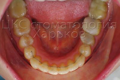 нижний зубной ряд после  лечения брекетами