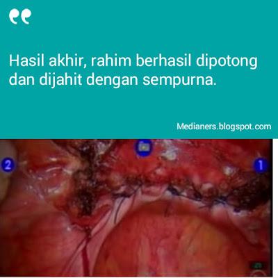 Pembedahan-robotik