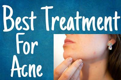 acne treatment,acne treatment scars,acne treatment lasers,spot on acne treatment,acne treatment hormonal,acne treatment in adults,acne treatment for teens,treatment for acne,acne treatment for men,