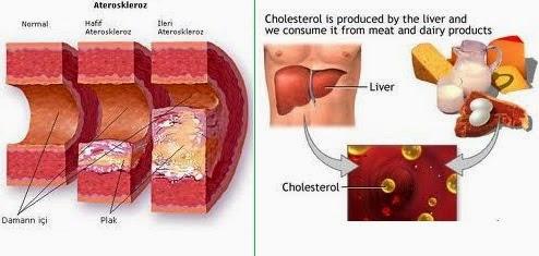 obat alami penurun kolesterol