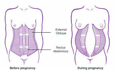 rectus abdominus pulled during pregnancy