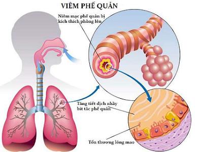 Bệnh viêm phế quản thuốc nhóm bệnh viêm đường hô hấp dưới