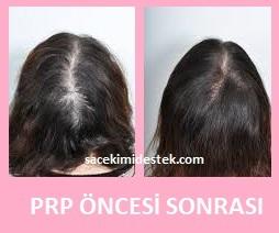 prp saç tedavisi yaptıranlar 22