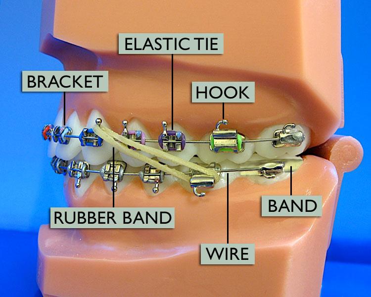 Gellerman Orthodontics Blog Know Your Braces Better
