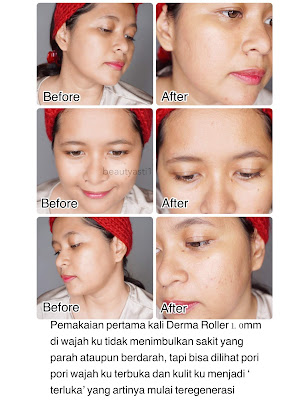 before-and-after-using-derma-roller-1-m.jpg