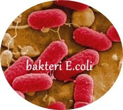 Cara Mengobati Infeksi Saluran Kencing Secara Alami