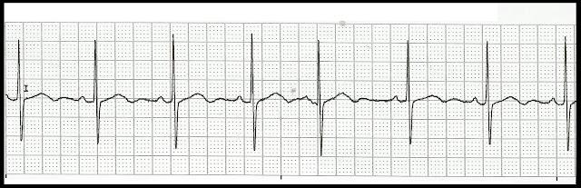 Float Nurse Practice EKG Rhythm Strips 170