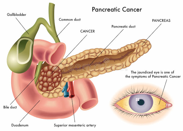 new treatment for pancreatic cancer survival rate