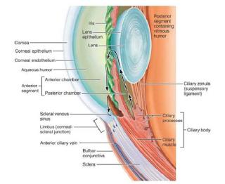 Glaukoma Akut Pada Mata