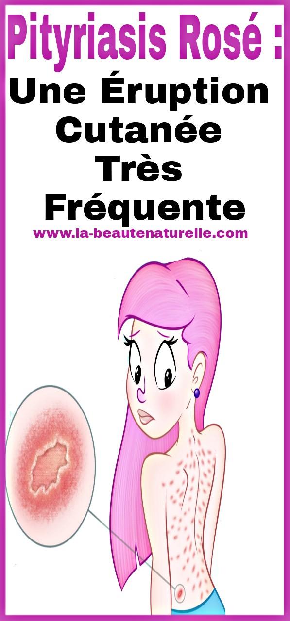 Pityriasis rosé : une éruption cutanée très fréquente