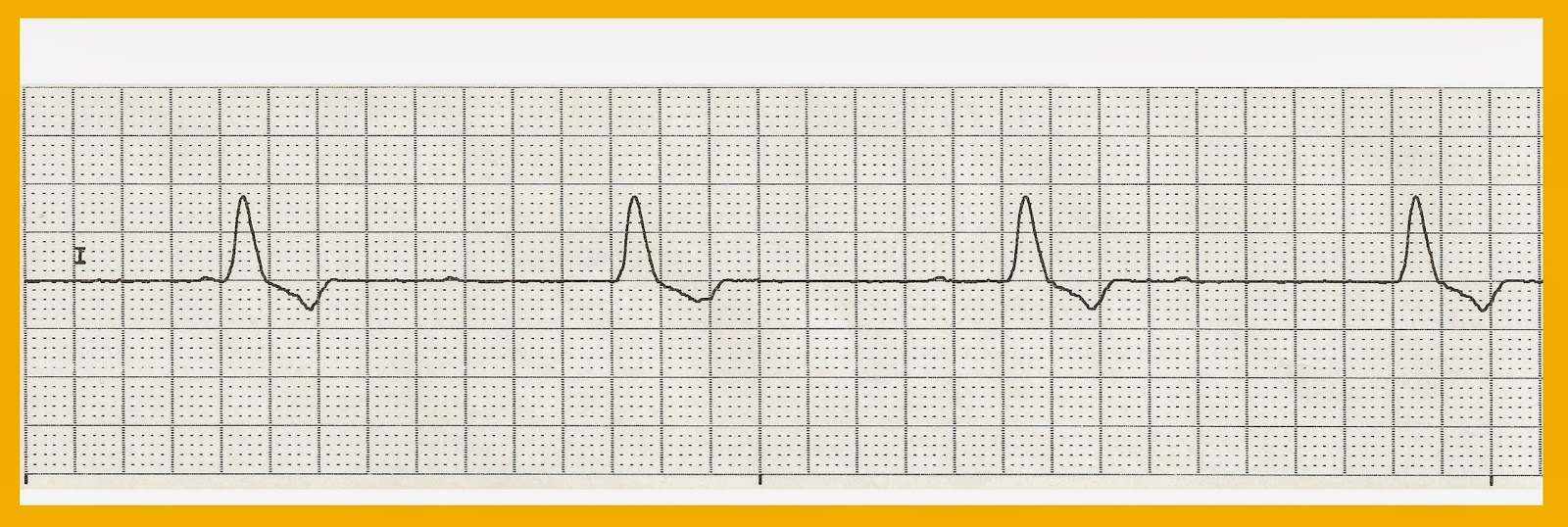 graphic regarding Ekg Practice Strips Printable identify Cardiac Strips Shots - Opposite Glimpse