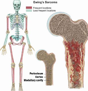 Ewing sarcoma is a rare type of cancer