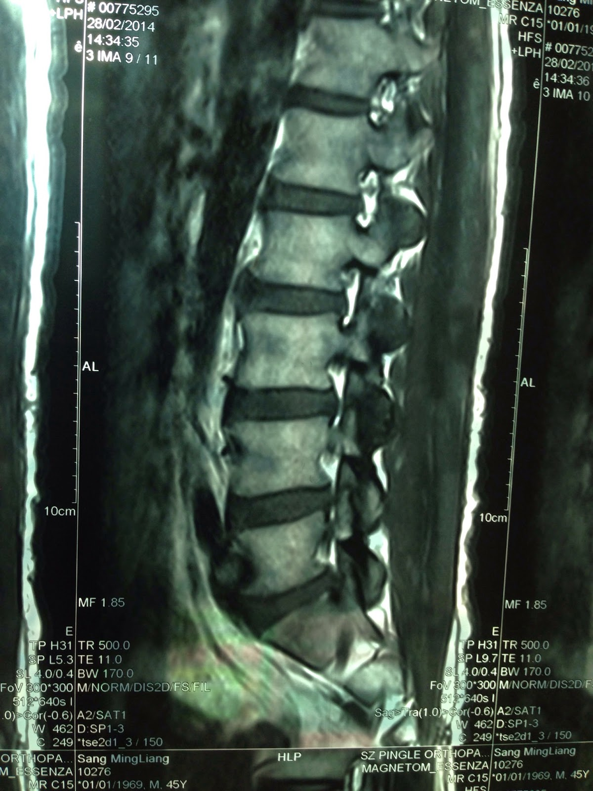 AKA博田法2回目と痛みの原因 | 腰椎椎間板ヘルニアと坐骨神経痛 ...
