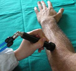 図:筋肉局所振動刺激