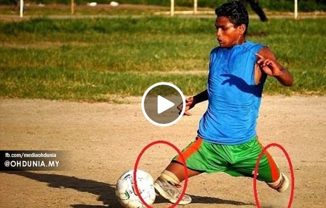 Lelaki Kudung Buktikan Bakat Bermain Bola Sepak (Video)