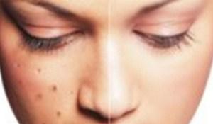 Manfaat minyak zaitun untuk menghilangkan flek pada wajah