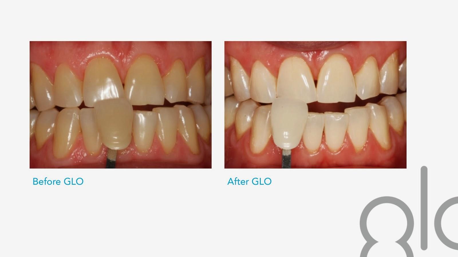 Union Hills Family Dentistry Dr Ethan Yoza