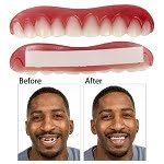 Perfect Smile Veneers