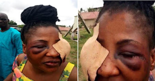 Beautiful Lady Battered & Injured By Her Married Lover (Photo)