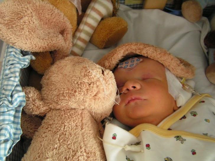 Mengenal Penyakit Trisomi 13dan Gejalanya