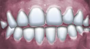 Dental abscess antibiotics - teeth whitening dentist cost