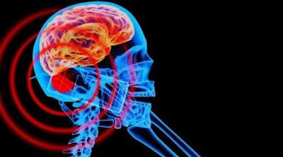 Berbagai Penyakit yang Ditimbulkan Dari Radiasi Ponsel