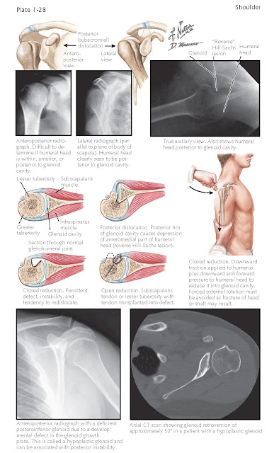 POSTERIOR DISLOCATION OF GLENOHUMERAL JOINT