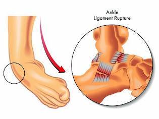 studi kasus sprain ankle yang menyerang atlit dan umum