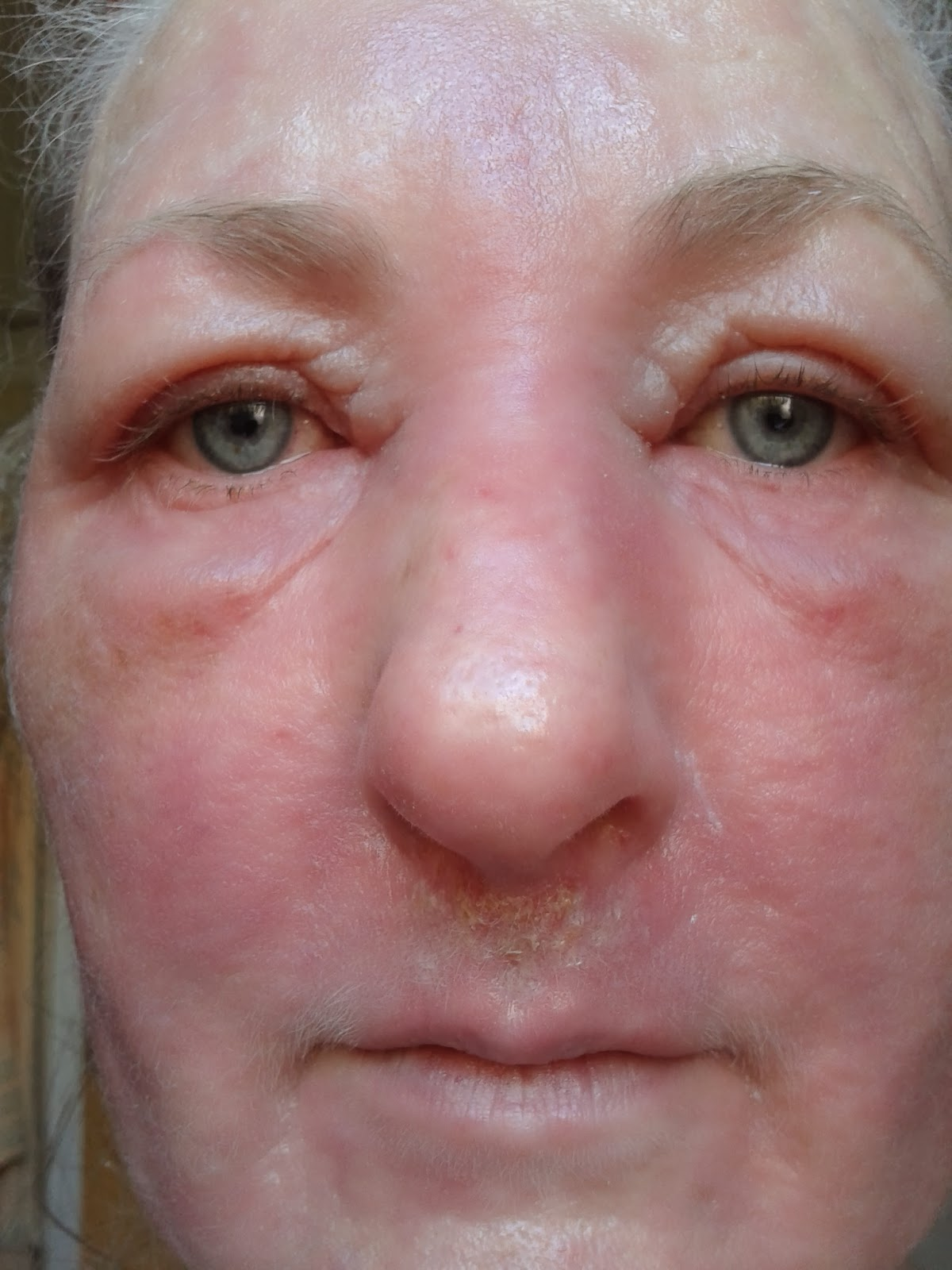 topical steroid withdrawal and recovery: February 2014