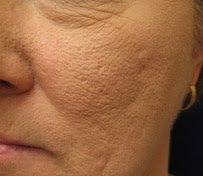 6 Steps Overcome Large Pores   Tips For Beautiful Women ...