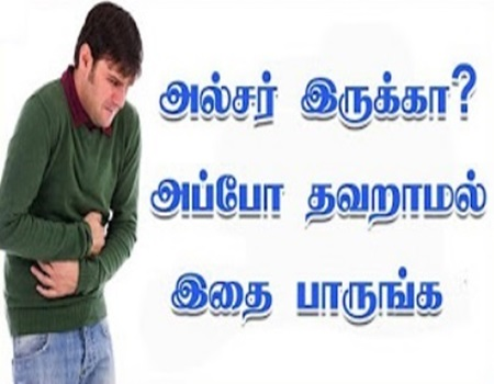 Stomach Ulcer: Causes, Symptoms, and Diagnosis in Tamil