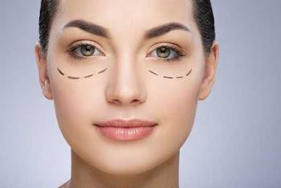 Phẫu thuật thẩm mỹ mắt to có để lại sẹo không vậy