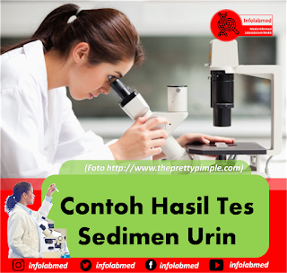 Sedimen Urin,sedimen urin adalah,sedimen urin pdf,sedimen urine lengkap,sedimen urine leukosit,sedimen urine epitel,sedimen urine silinder,sedimen urine bakteri positif,sedimen urine eritrosit,sedimen urine kristal amorf,sedimen urine dan keterangan,sedimen urine organik dan anorganik,sedimen urine kristal,sedimen urine amorf,urinary sediment,sedimen urin asam urat,sedimen urin adalah pdf,sedimen urine atlas,sedimen urin epitel adalah,sedimen urin pada ph asam,atlas sediment urine pdf,sedimen urin bakteri positif,sedimen urine bakteri,sedimen urin beserta keterangannya,sedimen urin basa,bentuk sedimen urin,gambar sedimen urin beserta keterangan,unsur unsur sedimen urin beserta penjelasannya,sedimen urin ca oksalat,cek sedimen urin,sedimen urin dan keterangannya,sedimen dalam urin,sedimen di urin,sedimen eritrosit dalam urin,sedimen leukosit dalam urin,sedimen urin pada penderita diabetes,gambar sedimen urin organik dan anorganik,unsur sedimen urin organik dan anorganik,unsur unsur sedimen dalam urin,sedimen urine epitel positif