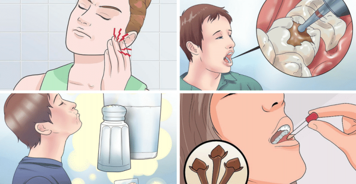 Natural Tips To Get Rid Of Dental Pain Naturally