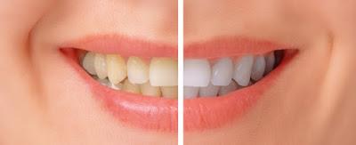 Gigi putih dan mengkilap merupakan penunjang atau pendukung penampilan seseorang Gigi Kuning Akibat Kopi & Perokok Berat, Atasi Dengan Bahan Ini!